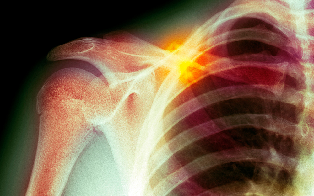 Cedars-Sinai Researchers May Revolutionize How Orthopaedic Injuries Are ... teaser image
