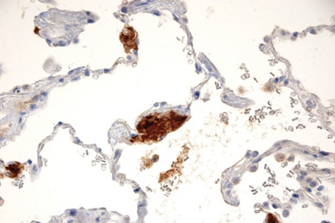 pulmonary and mediastinal pathology sample