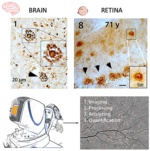 First Identification and Noninvasive Imaging of Pathological Hallmarks of AD: Aβ Plaques in the Retina